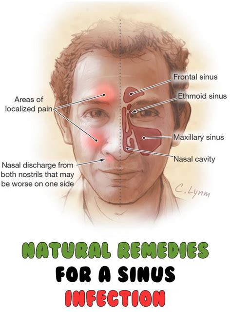 Can Detoxing Cause Sinus Inflammation by 17 Best Images About Health On Respiratory