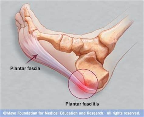 Planter Facetious by How To Apply Kinesio Precut Foot Kinesiology
