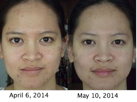 vichy dark spot corrector before and after photos final update of garnier skin renew dark spot corrector vs