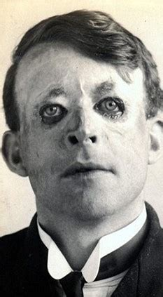 pictured: first plastic surgery that saved officer from