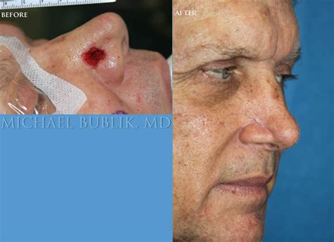 reconstruction after mohs surgery books mohs reconstruction specialist los angeles beverly