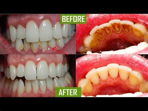 how to remove plaque from s teeth naturally 17 best ideas about how to remove plaque on plaque removal how to get rid