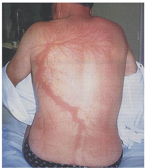 lightning scars www pixshark com images galleries with