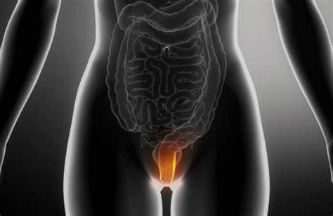 emorroidi interne cause emorroidi esterne interne cause sintomi dieta e