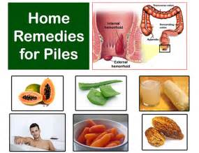 hemorrhoids home remedies home remedies for piles treatment