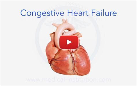 congestive failure failure