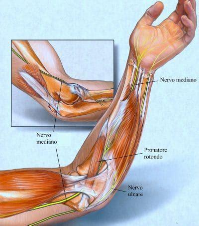 dolore interno braccio sinistro frattura radio composta o scomposta riabilitazione e
