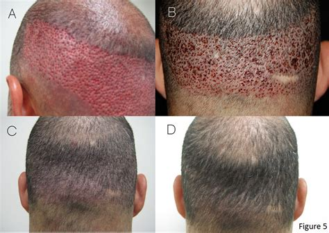 hair transplant in amerca follicular unit extraction fue beirut lebanon brazilian