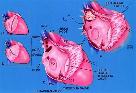 warden procedure diagram sinus venosus atrial septal defect circulation