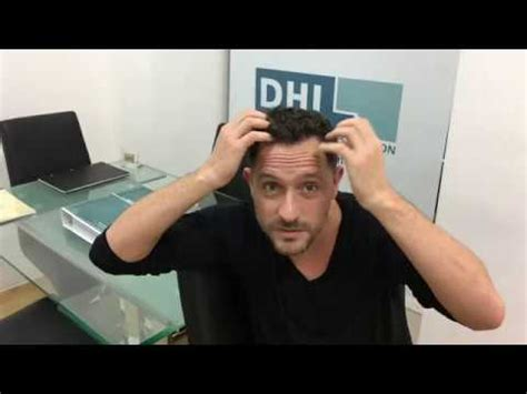 dhi hair transplant reviews dhi hair transplant review 6 months after the dhi