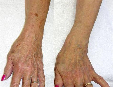 hand tattoo veins laser vein treatment before after photos winston salem nc