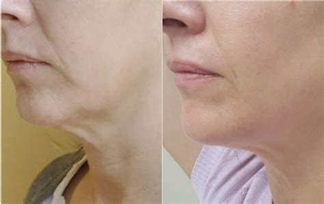 Skin Rejuvenation Before After Photos Lightrx