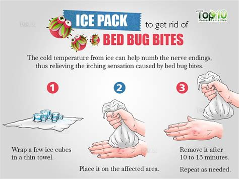how to relieve bed bug bites how to get rid of bed bug bites top 10 home remedies