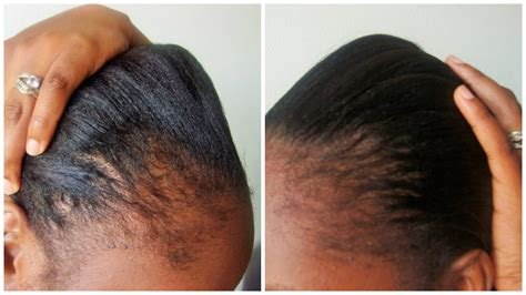 relaxed hair growth challenge castor oil for relaxed hair growth best black hair 2017