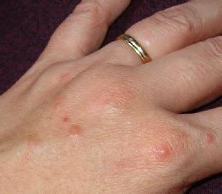 dyshidrotic eczema treatment dyshidrotic eczema home