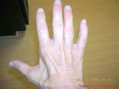 Thumb And Fingers ulnar nerve damage causes atrophy in the