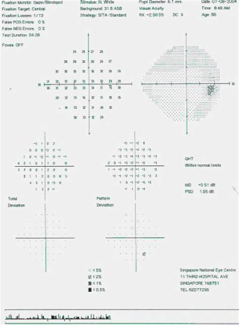 Obat Xalatan macam2 pengetahuan glaukoma prosedur pengobatannya