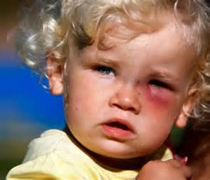 Can U Get Pink Eye From On A Pillow by Toddler Could Lose Eye After Catching Infection From