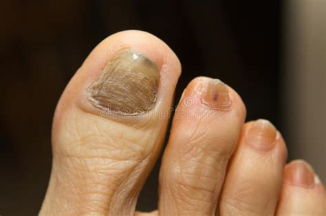 Nail Tumor Picture