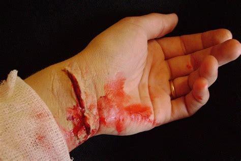 Imagenes De La Justicia Herida | 191 qu 233 es una herida todo sobre heridas
