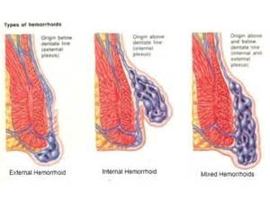 bright blood in stool after surgery foods to thin blood