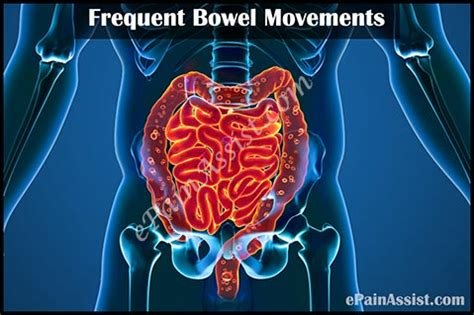 Constant Stool Movement by Frequent Bowel Movements Treatment Causes Symptoms