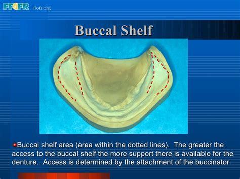 Buccal Shelf 2 anatomy of the denture foundation areas