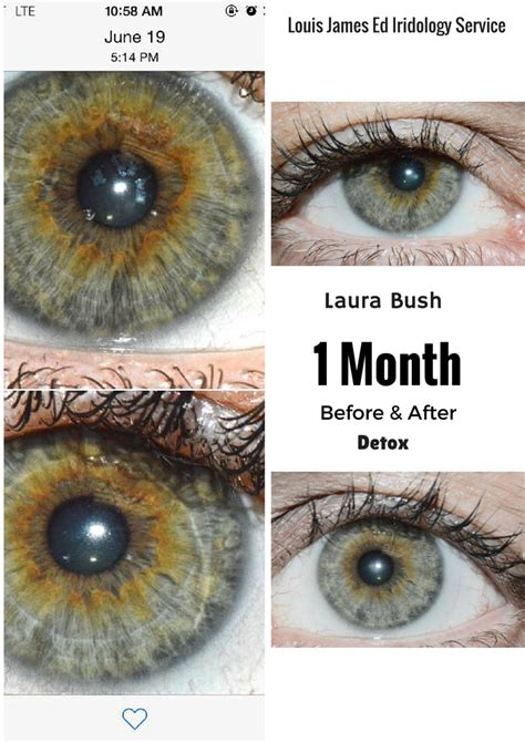 S Eye Color Changing After Detoxing by Louis Edward Iridology Service Before And