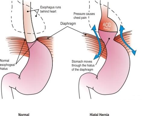 diagram of hiatal hernia my visit today with dr ku thank you quot susans journey quot