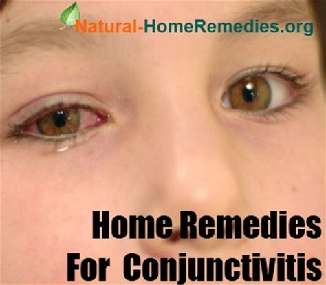 conjunctivitis home remedies conjunctivitis treatment