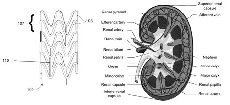 rep section patent us8840678 drug eluting bioabsorbable renal artery