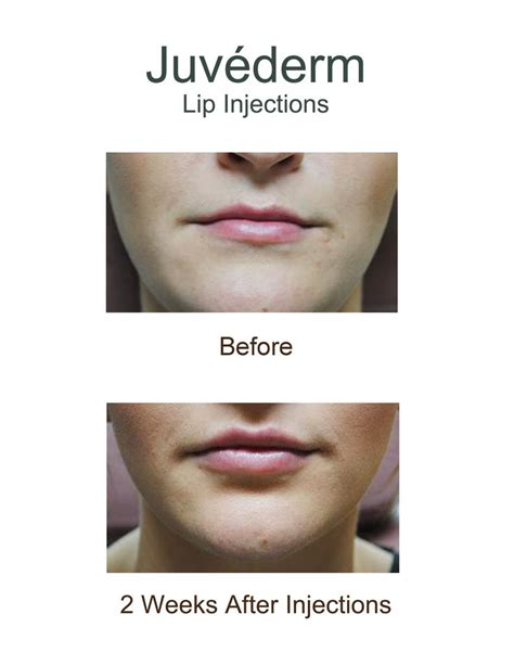 two weeks after the official opening of the little mermaidsection before and after juvederm a dermal filler lip injections
