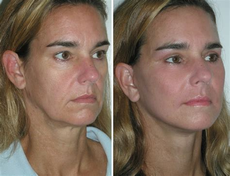 Is A Mini Lift A Facelift Alternative by Before And After Mini Facelift With Cheek Implants And
