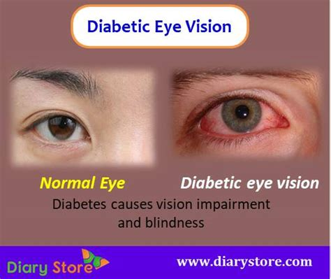 eye health dangers eye care diseases types risk factors prevention food