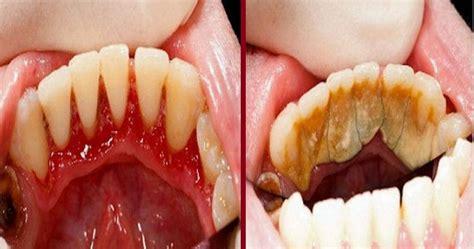 Bersihkan Karang Gigi Di Bali Petua Tips Hilangkan Karang Gigi Tanpa Perlu Jumpa Doktor