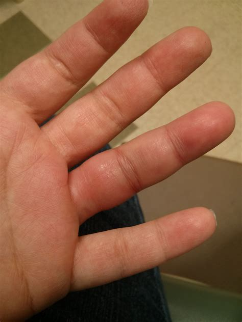 Search Broken Pin Broken Finger Signs Image Search Results On