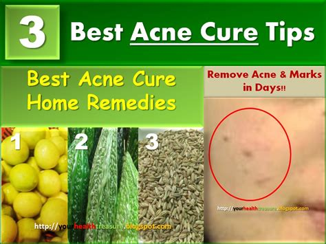 top three homeopathic remedies for acne homeopathic acne 3 best home remedies for acne acne treatment health