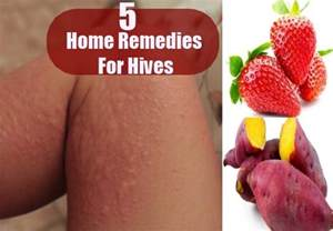 hives home remedy home remedies for hives treatments and cure for