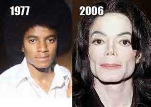 Before Surgery Michael Jackson Plastic Surgery Before And After Nose