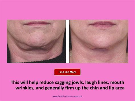 best cream for sagging jawline best creams for sagging chin and neck photos of sagging