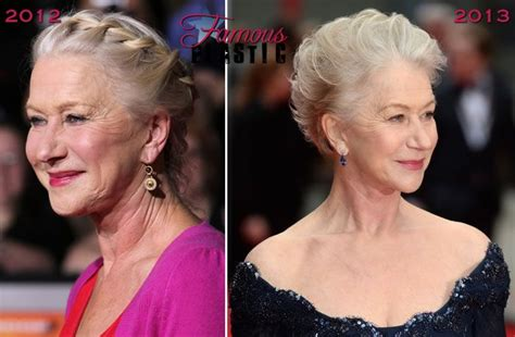 celebrity neck lift 141 best before after images on pinterest at home