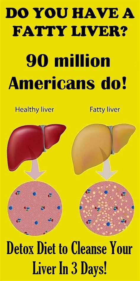 Does Water Detox Your Liver by Do You A Fatty Liver 90 Million Americans Do Fatty