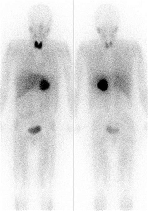 Phäochromozytom: Diagnostik und Therapie