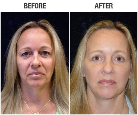 Is A Mini Lift A Facelift Alternative by Facelift Before And After Photos Aesthetica Cosmetic Surgery