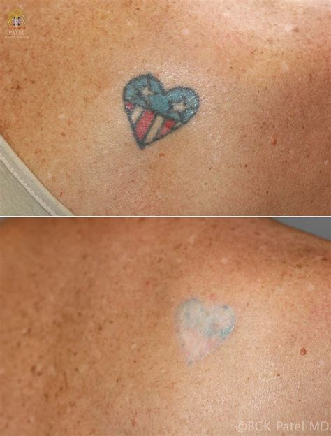 how to remove a tattoo with salt efficient removal of tattoos using advanced lasers