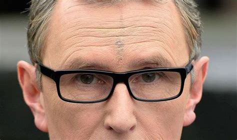 covering a large scar on forehead nigel evans covers head scar with make up uk news