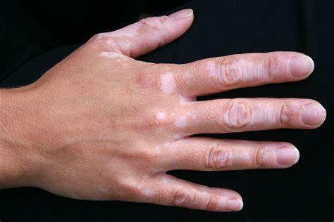 vitiligo images vitiligo daavlin
