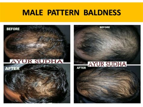 male pattern baldness name alopecia areata ayurvedic view and treatment in india