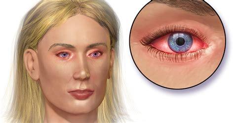 Obat Mata Merah Bintitan cara alami mengatasi mata merah gatal berair tips cara