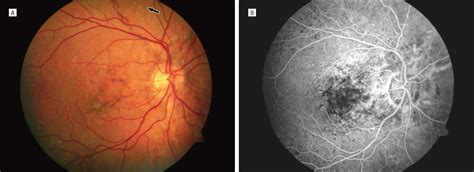 pattern dystrophy eye disease spectrum of pattern dystrophy in pseudoxanthoma elasticum